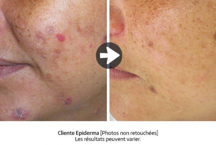 resultat_neutra-acne_peeling_fr